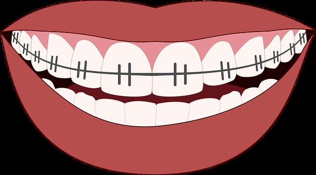 úsměv s rovnátky